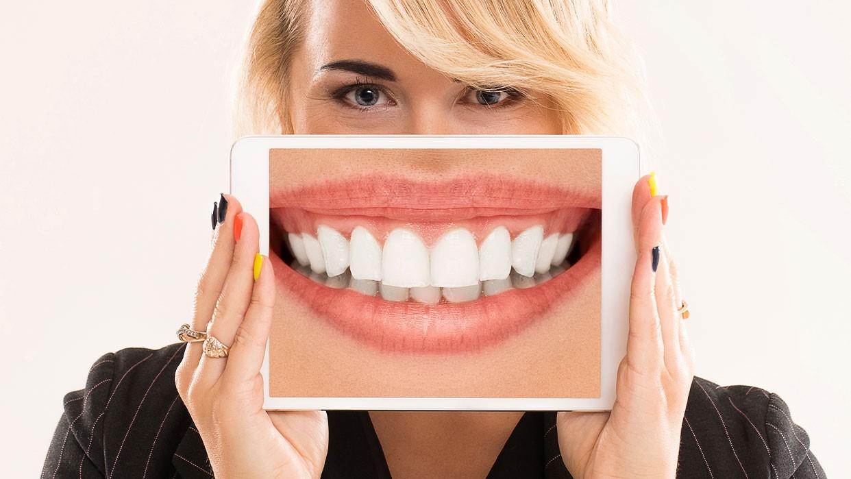 Tener dientes blancos es uno de los ideales de belleza con mayor inversión